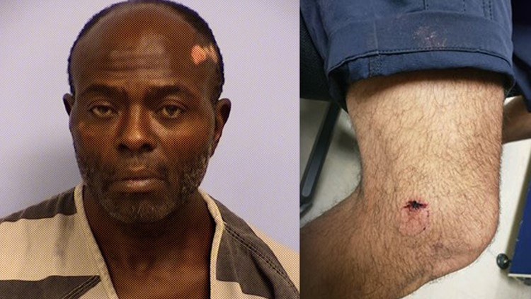 Homeless man accused of injuring police officers