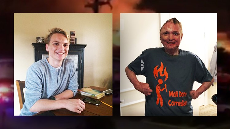 San Marcos apartment fire survivor still recovering one year later