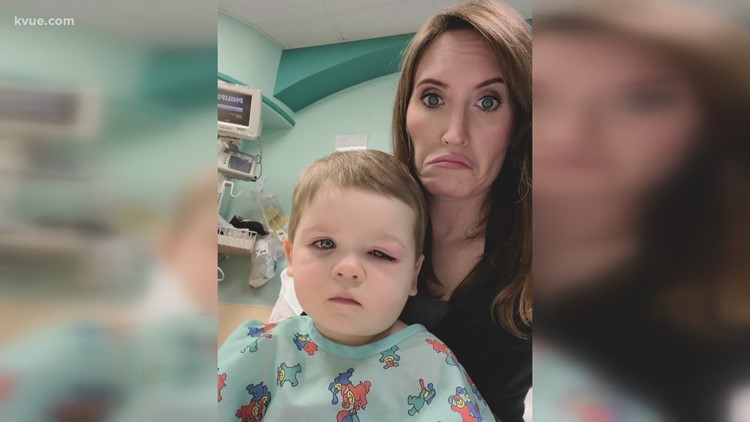 2-year-old gets infection from bath toy