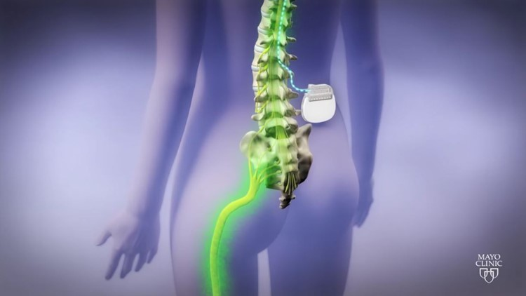 Spinal Graphic