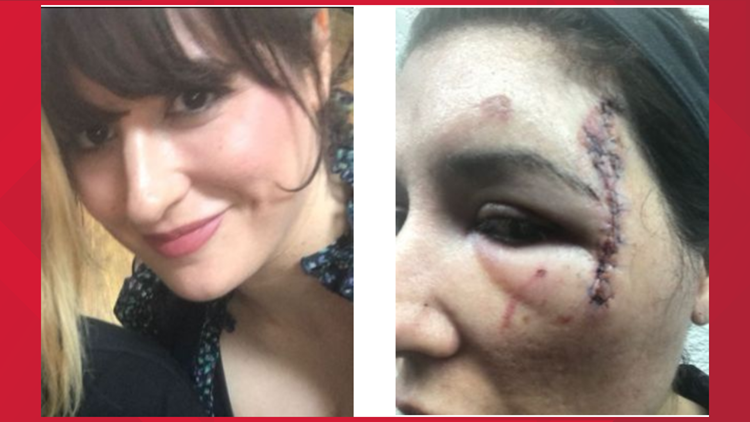 Woman sues APD for excessive force