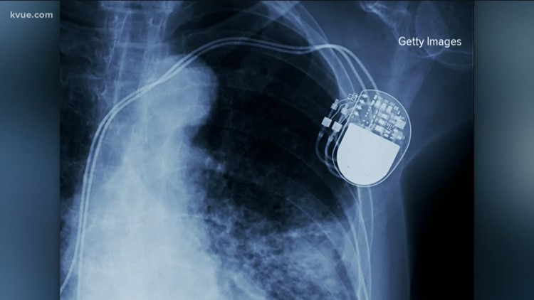Defenders: Tracking failures in medical devices