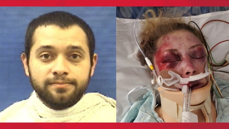 'My family can now relax,' says Dallas-area beating victim after feds charge, detain attacker